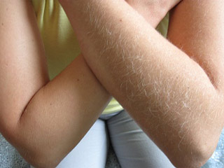 Как быстро волосы растут после шугаринга